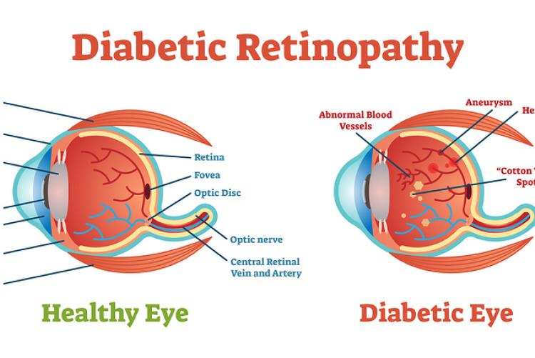 See How Diabetes Effects Your Eyes